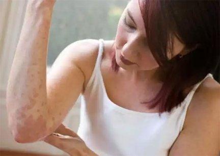 vörös folt a bőrön az idegektől nemzetközi protokoll a pikkelysmr kezelsre