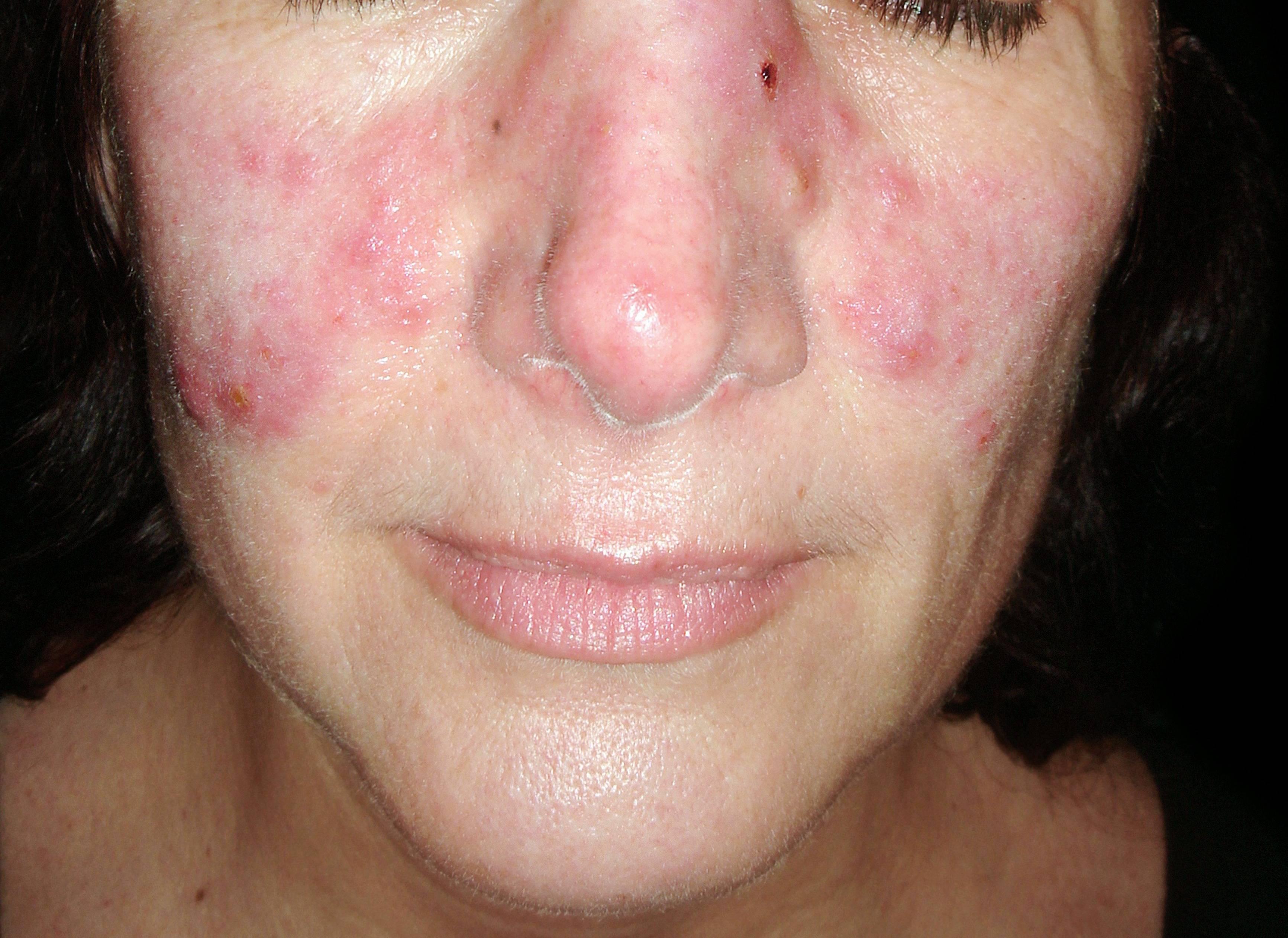 kiütés a bőrön vörös foltok formájában az állon betegség pikkelysömör alternatív kezelsi mdszer