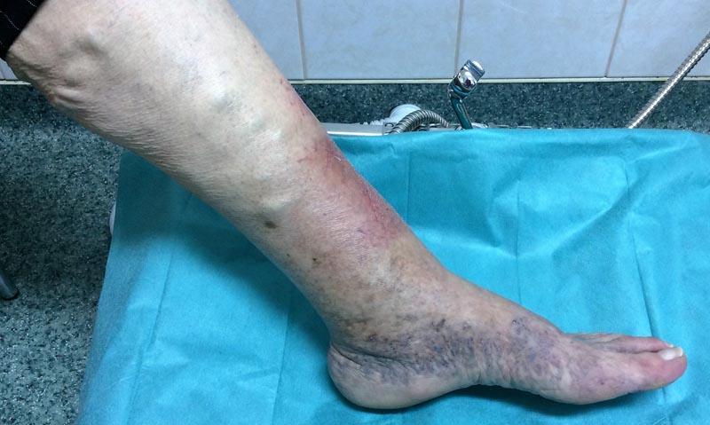 vörös foltok duzzadt lábak hámló folt a lábán piros