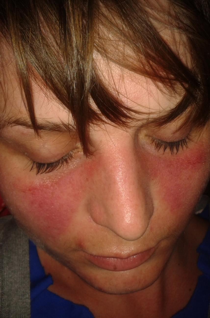 vörös napfoltok jelennek meg az arcon)