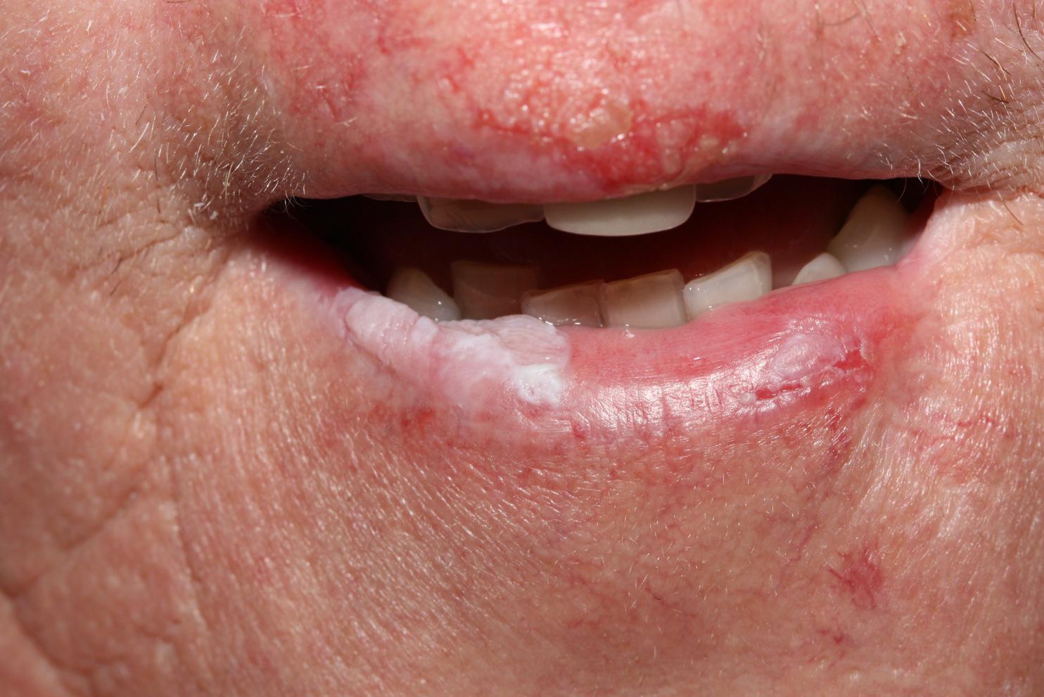 miért jelennek meg vörös foltok az arcon, amelyek viszketnek hogyan lehet eltávolítani a vörös foltokat az ajak herpesz után