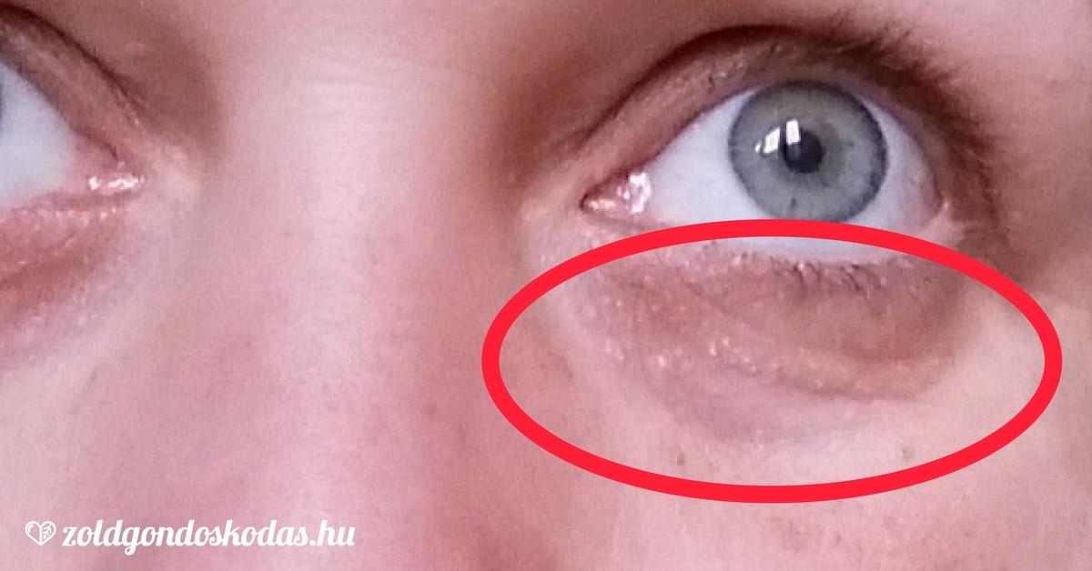 vörös foltok a szem alatt és az arcon
