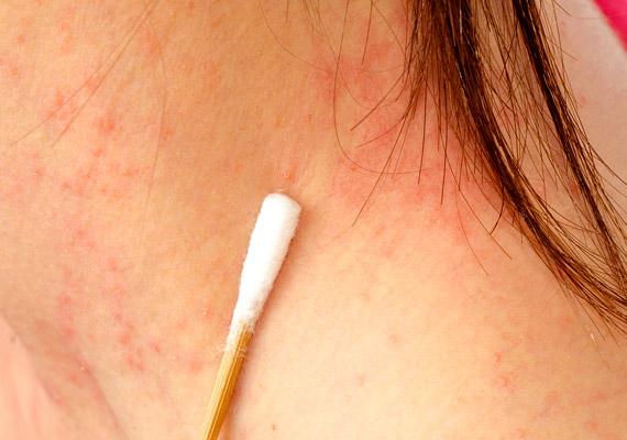 a nyakon vörös pikkelyes folt található karbamid alapú pikkelysömör krém