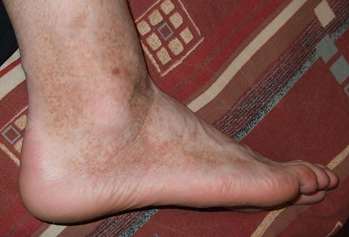 a naptól vörös foltokkal borított lábak