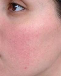 a fájás után vörös folt van az arcon)