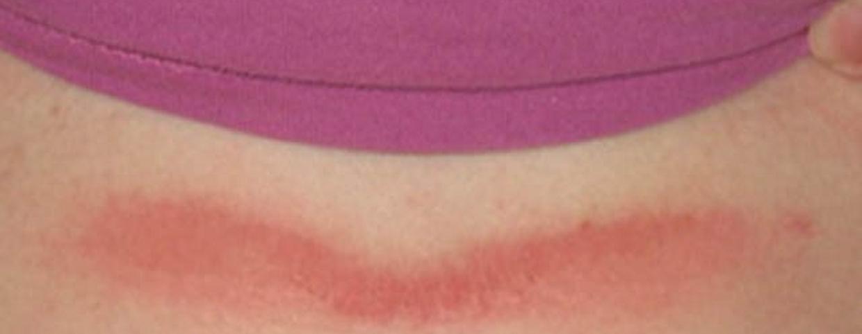 Piros foltok a mellek között - Allergének