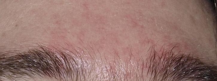 vörös foltok az arcon hámlás okozza súlyos pikkelysömör kezelés