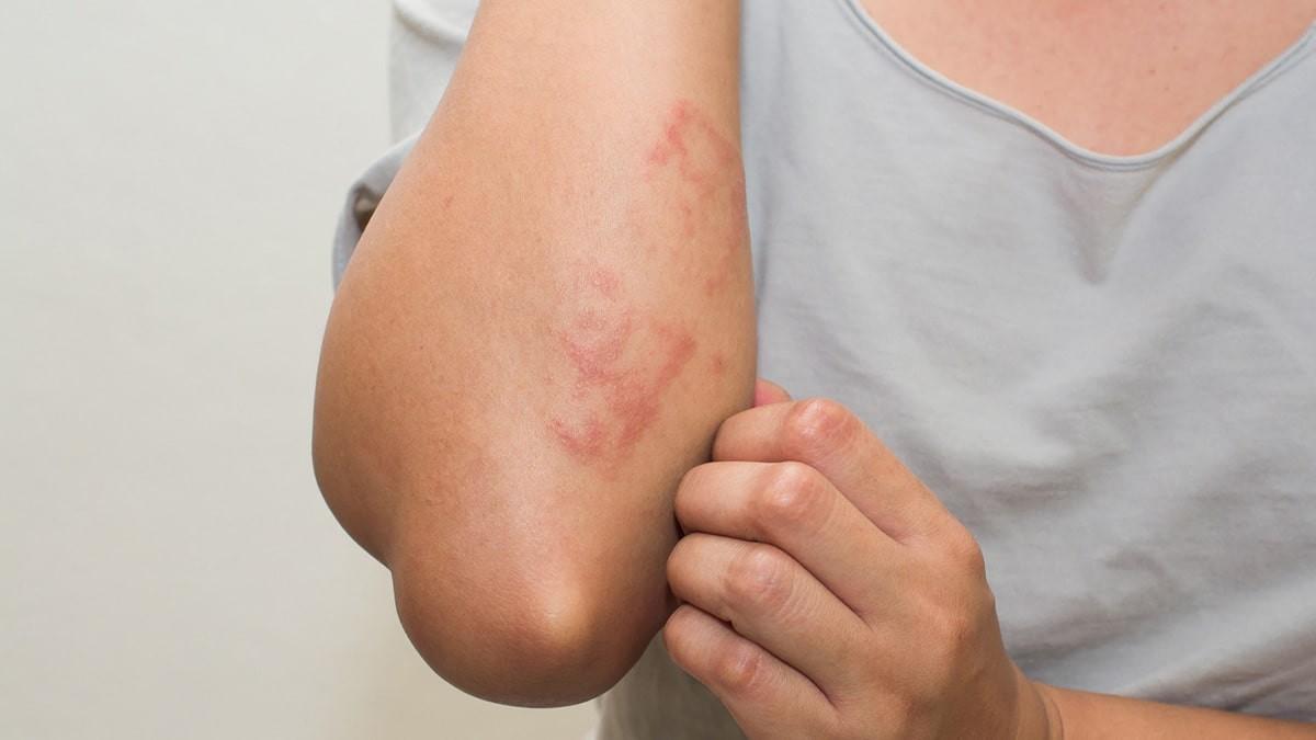 kiütés a bőrön vörös foltok formájában az állon a könyök és a térd vörös foltokat viszket