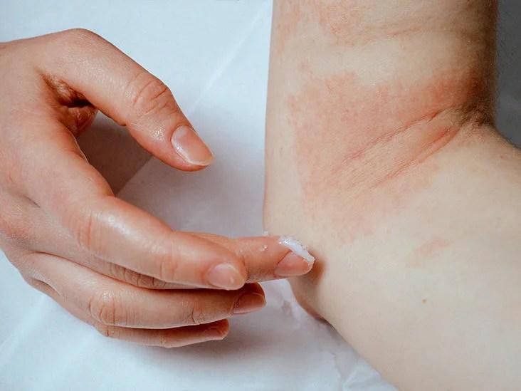gygynvnyek pikkelysömör dermatitis