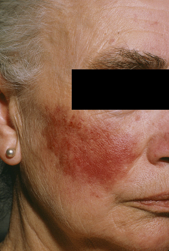 vörös foltok a bőrön 50 év után vörös foltok mastitis kezeléssel
