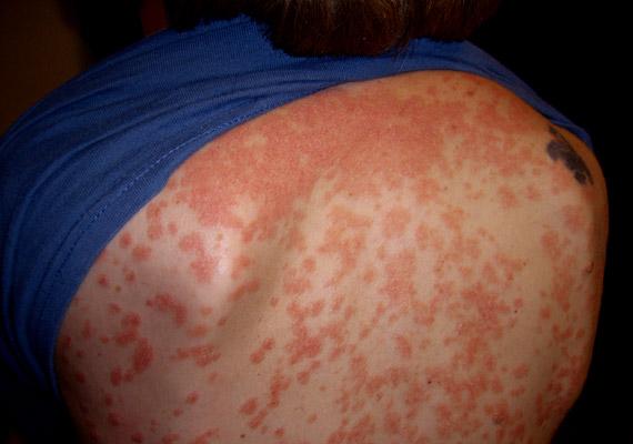 hova menjen a pikkelysmr kezelsre hámló bőr a testen vörös foltok