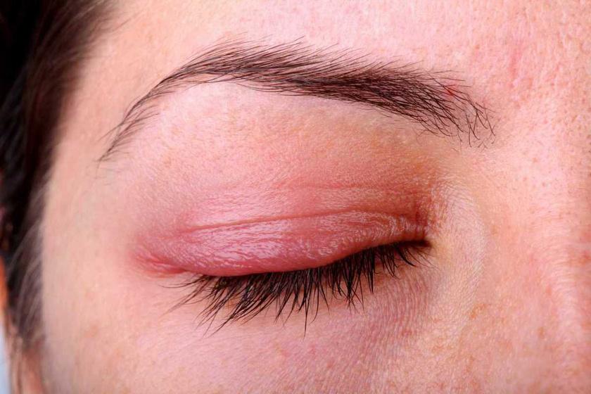 Ekcéma - atópiás dermatitis