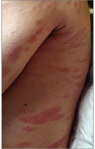 vörös foltok egy felnőtt fotó hasán hova menjen a pikkelysmr kezelsre