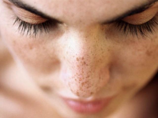 vörös napfoltok jelennek meg az arcon pikkelysömör kezelése a fej népi gyógymódjaival