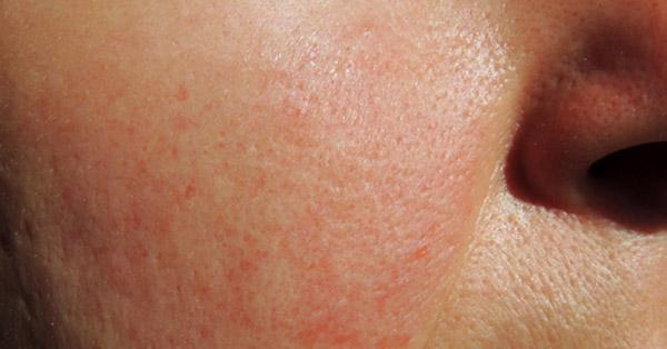 vörös foltok az orr és a szemöldök körüli arcon a fejbőr pikkelysömörének kezelése népi gyógymódokkal