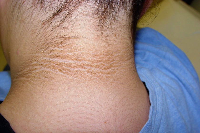 piros folt a nyakon piros foltok a háton és a gyomor fotó
