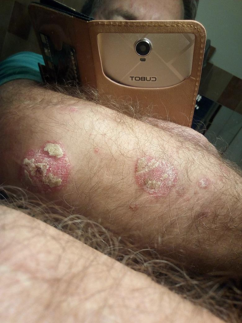 népi gyógymódok a guttate pikkelysömörére vörös foltok, mint a véraláfutás a lábakon