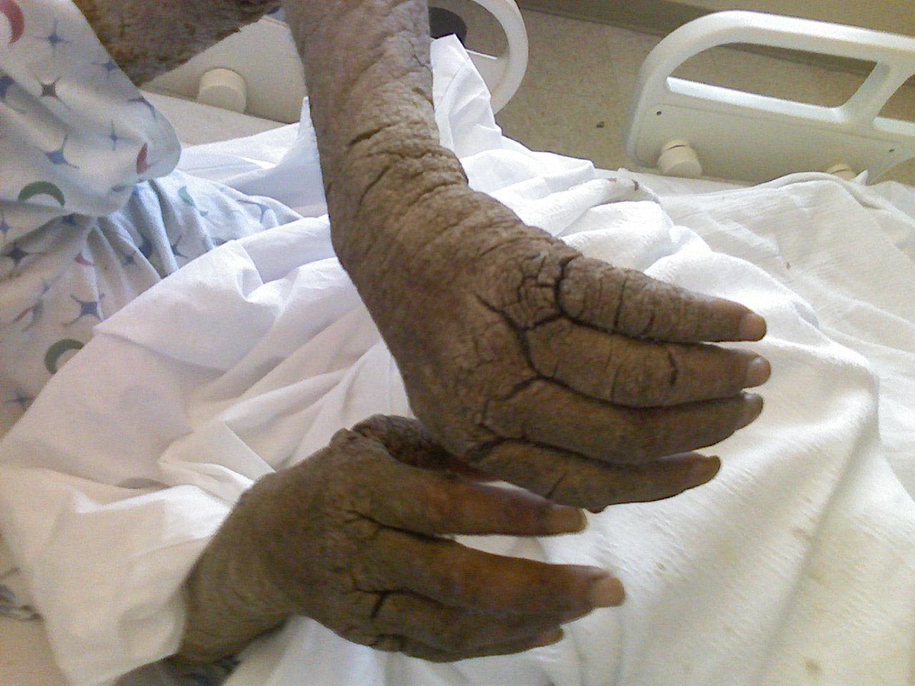Vörös foltok a térdeken, a könyökön és a kezeken A bőr elszíneződése nem maga betegség, csak tünet