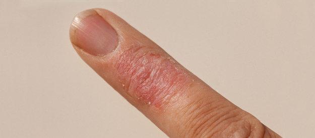 száraz dermatitis pikkelysömör kezelése alternatív kezelés a pikkelysömörhöz