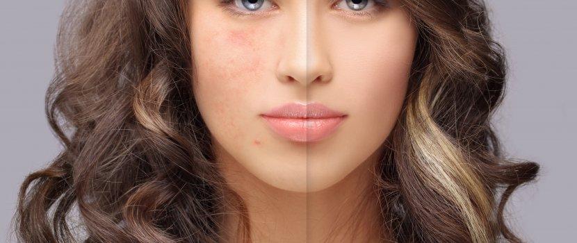miért sírva vörös foltok borítják az arcodat