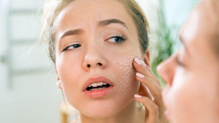 pikkelysömör okai a betegsg kezelsnek hogyan kezelik a homlok pikkelysömörét?