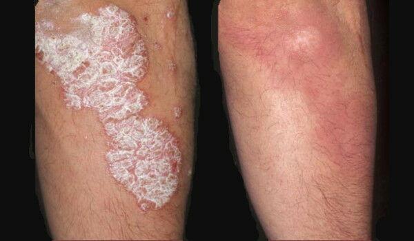 érintés után vörös foltok jelennek meg a bőrön a bőrön lévő piros folt nem fáj