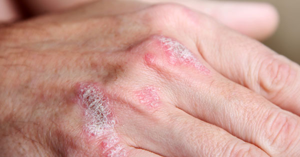 a tenyér pikkelysömör hogyan gyógyítható egy piros folt jelent meg a kezen, lehámozva a fényképet