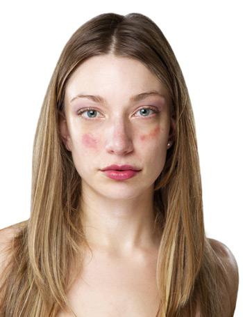 vörös foltok az arcon hámlás okozza népi gyógymódok pikkelysömörre a testen a legjobbak