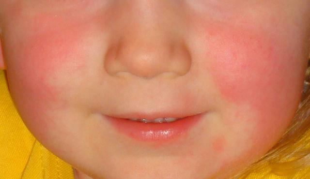 vörös foltok az arc bőrén milyen orvosság segít a pikkelysömörben