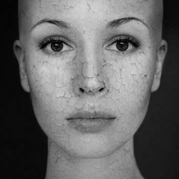 hogyan lehet megszabadulni a pelyhes vörös foltoktól az arcon pikkelysömör szanatórium gyógykezelése
