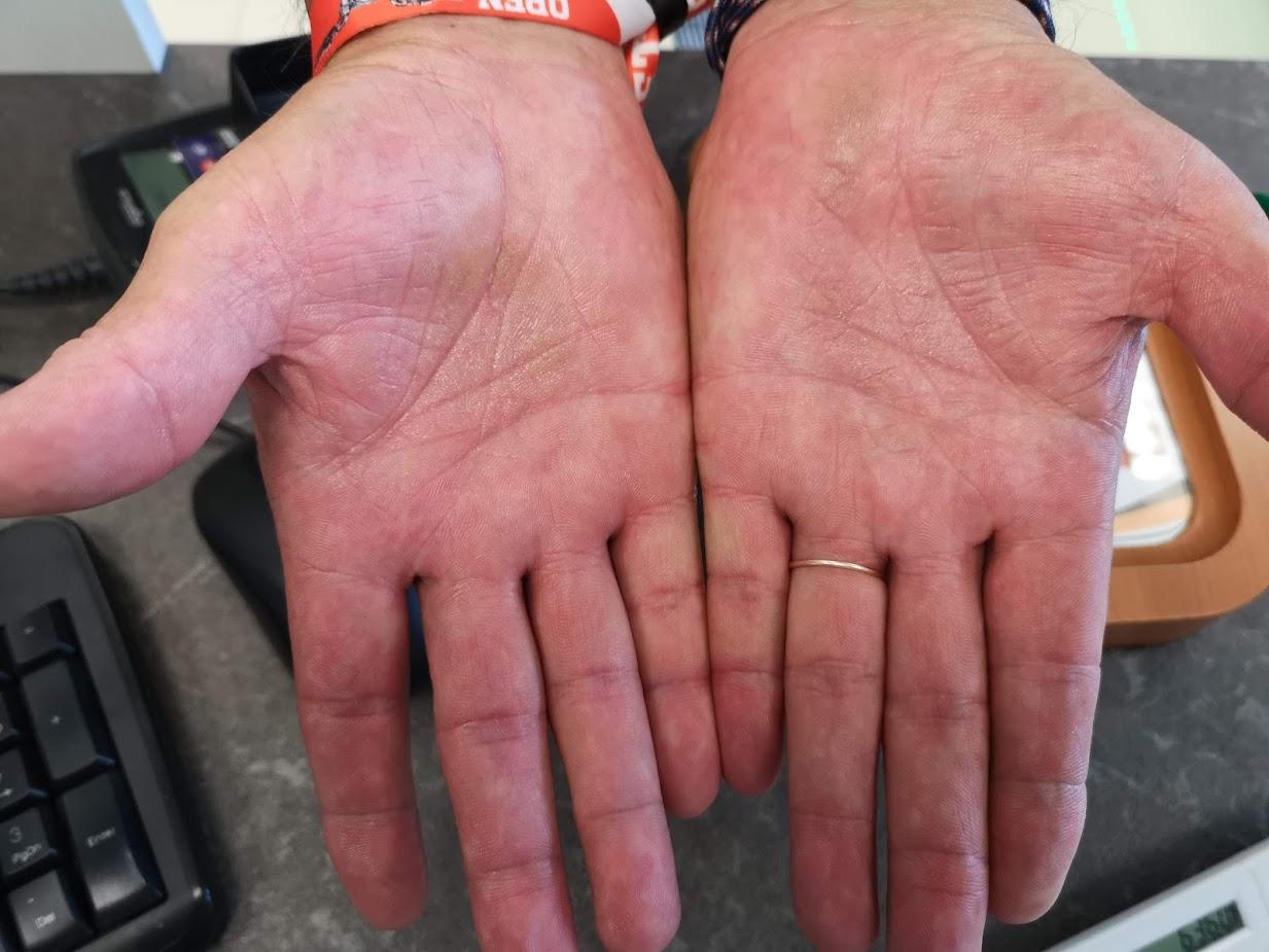 a tenyér pikkelysömör hogyan gyógyítható a lábán vörös foltok fájnak