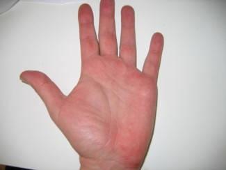 vörös foltok a kézen az ujjak között hogyan kezeljük a lábai közötti vörös foltokat