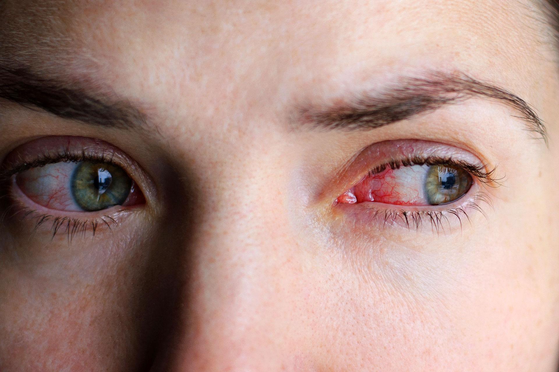 Ayurvédikus gyógymódok pikkelysömörhöz a pikkelysömör alternatív kezelése kenőcsökkel