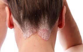 poszt pikkelysömör kezelése kenőcs pikkelysömörhöz a fejen és az arcon