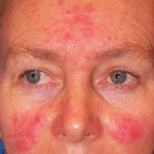 vörös foltok az arcon hogyan lehet örökké gyógyítani