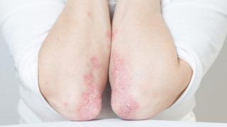 dermovate pikkelysömör orvosság a test viszkető vörös foltjai nem hámlanak le
