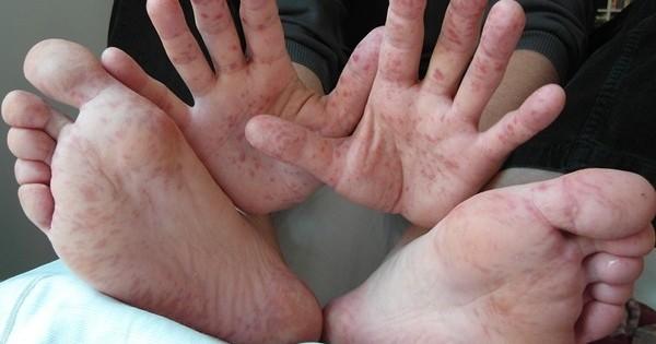 vörös foltok jelennek meg a lábán, és lehámlanak