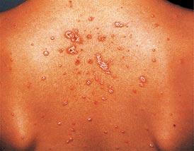 vörös foltok a lábakon limfosztázissal népi gyógymódok pikkelysömörre az arcon