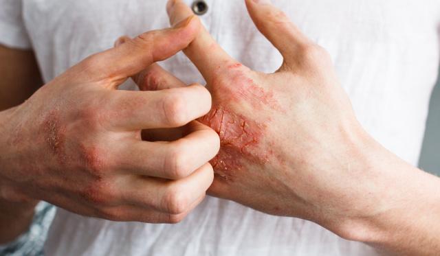 Puwa terápia a pikkelysömör kezelésében - Vörös foltok vannak az arcon és égnek
