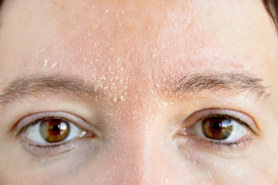 A szem alatti arcon vörös folt jelent meg - diora.hu
