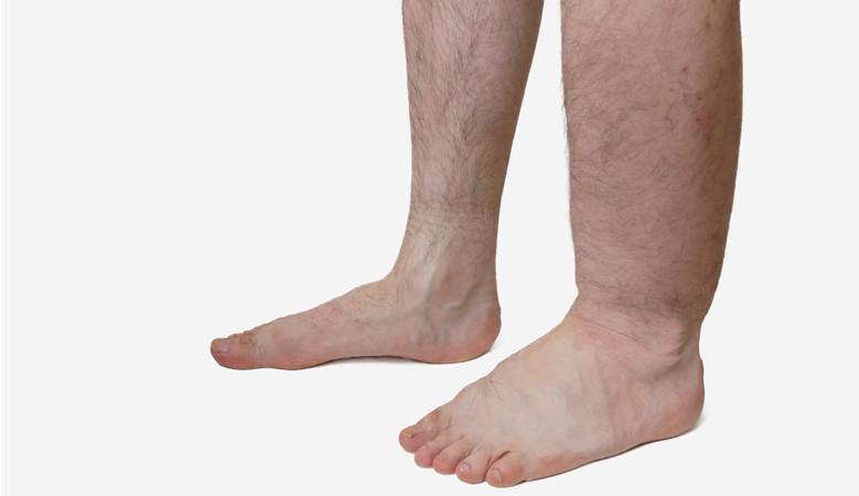 a varikózus vénáktól elsötétült lábak