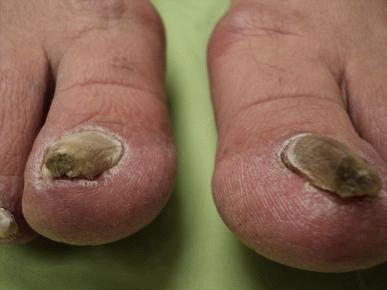 hogyan lehet megszabadulni a pikkelysömörtől a lábakon otthon vörös izzadságfoltok a lábakon