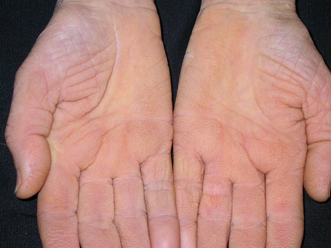 hogyan lehet enyhíteni a pikkelysömör gyulladását a kezeken Az Essentiale Forte gyógyítja a pikkelysömör