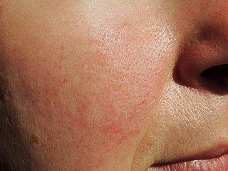 vörös foltokkal duzzadt arc