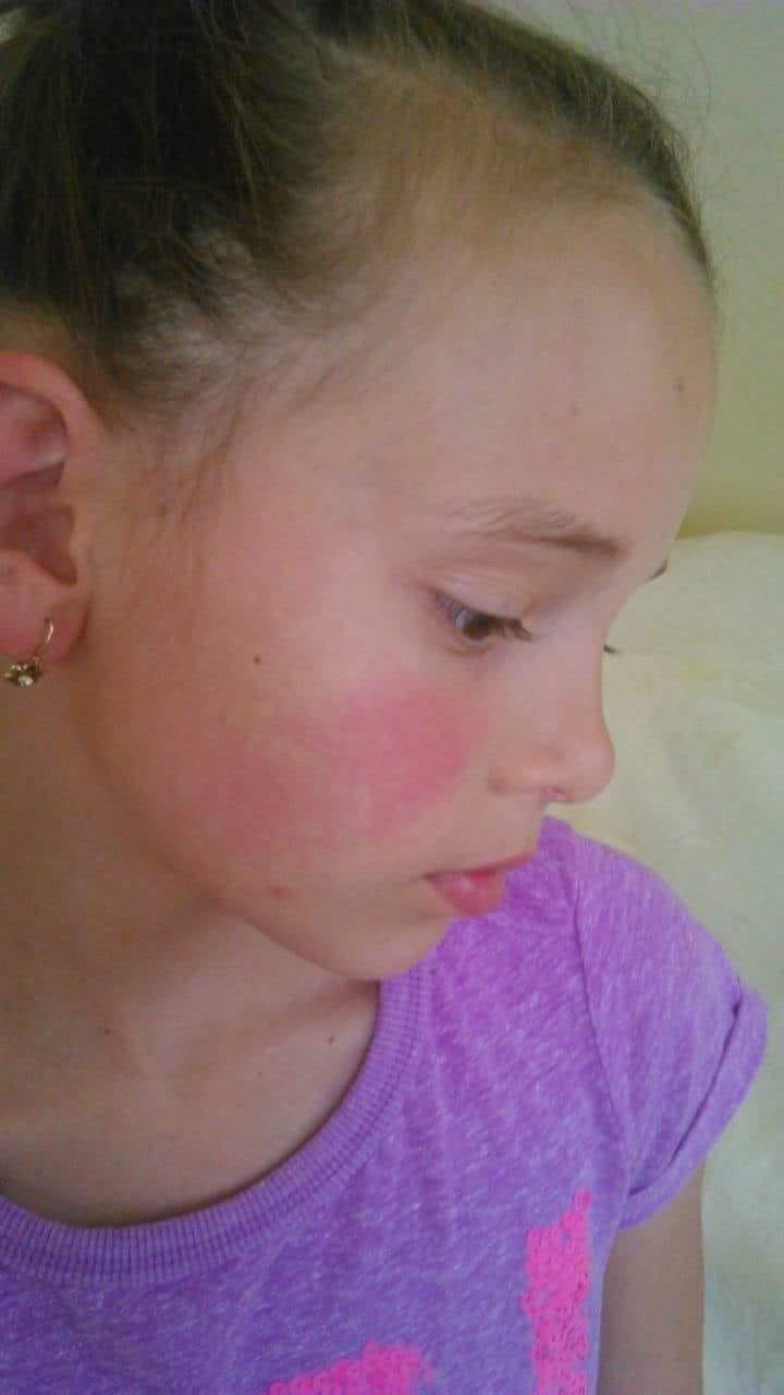 vörös folt jelent meg az arcán viszket