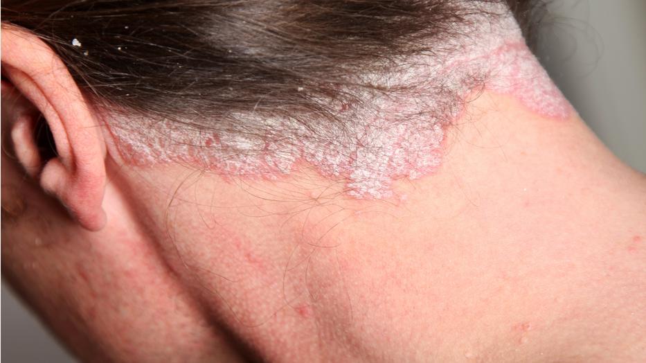 a pikkelysmr a leghatkonyabb kezels vörös foltok az orr közelében hámoznak, mi ez