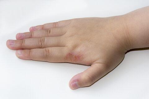 vörös foltok a kézen az ujjak között foltok a kezeken és a lábakon piros fotó