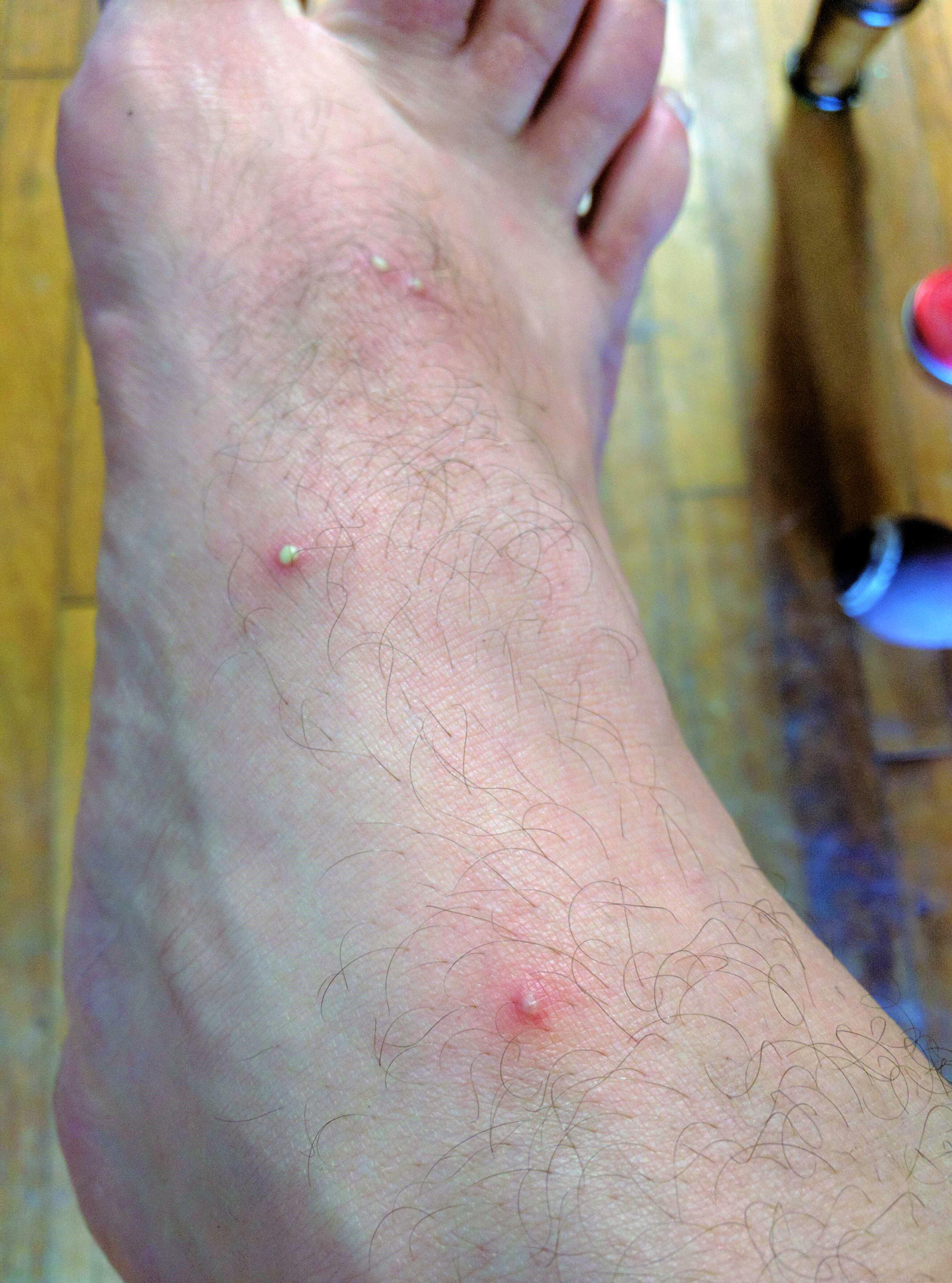 vörös folt a lábak között és viszketés