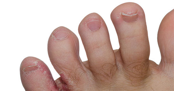 hogyan lehet a pikkelysömör gyógyítani a kezeken