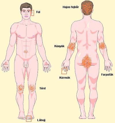 búzacsíra pikkelysömör kezelése van egy piros folt a karján hámlik